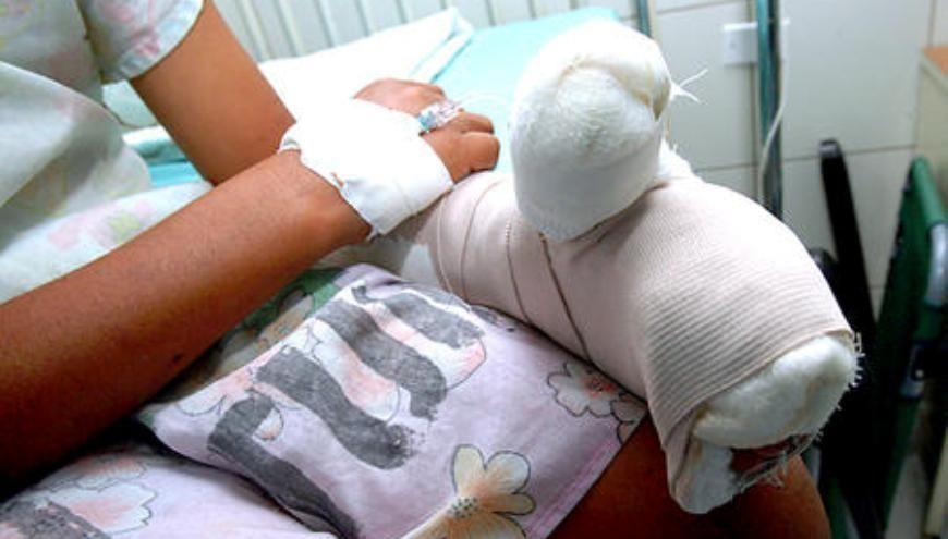 Ya suman 105 las personas quemadas y lesionadas por pólvora en el País en esta temporada