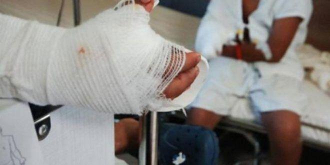 Cifra de quemados por pólvora en el Tolima disminuyó pero sigue siendo alta