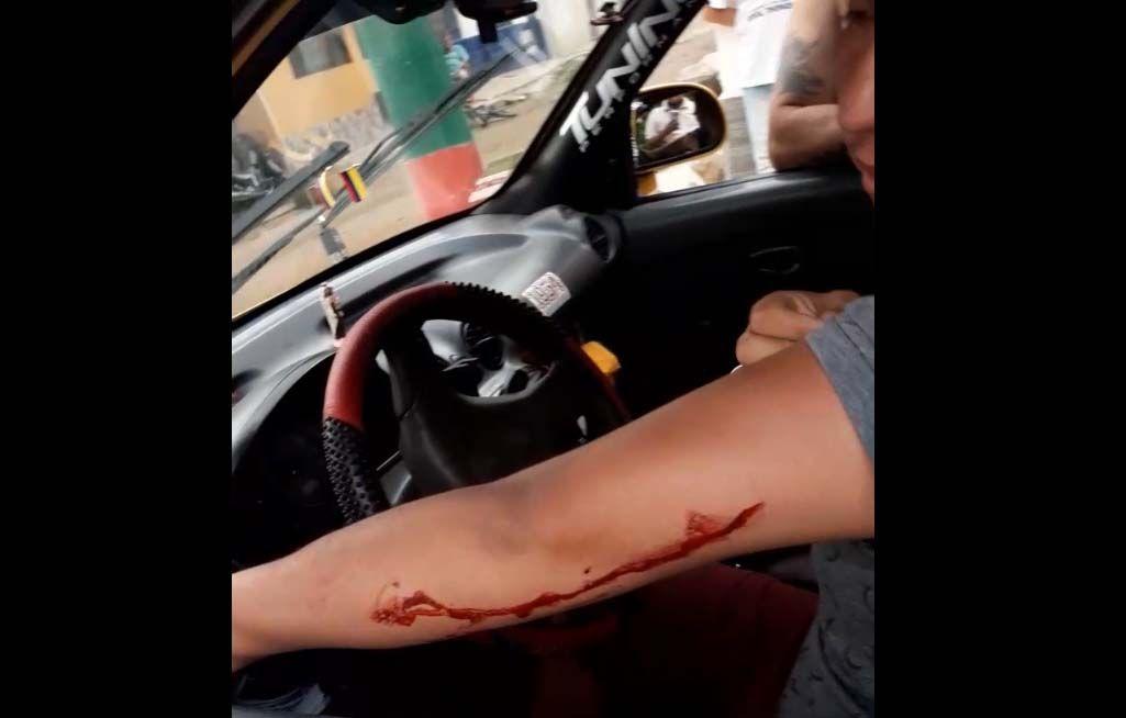 Atracaron e hirieron a taxista en el barrio San Antonio