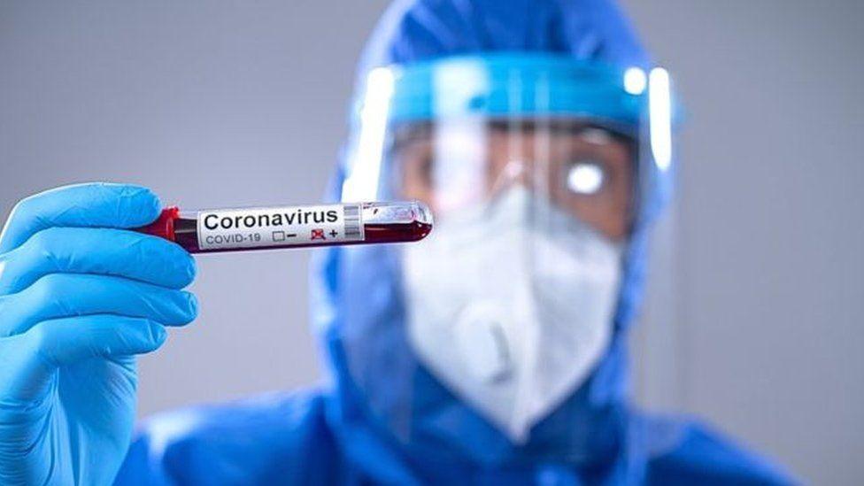 Nueve fallecimientos y 417 nuevos contagios por Covid este martes en el Tolima